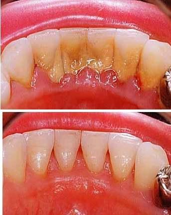 Чистка зубного налета цена